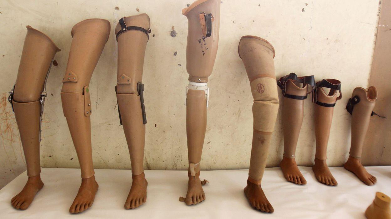 De la coca ne cach e dans une jambe artificielle - Poser de la pelouse artificielle ...