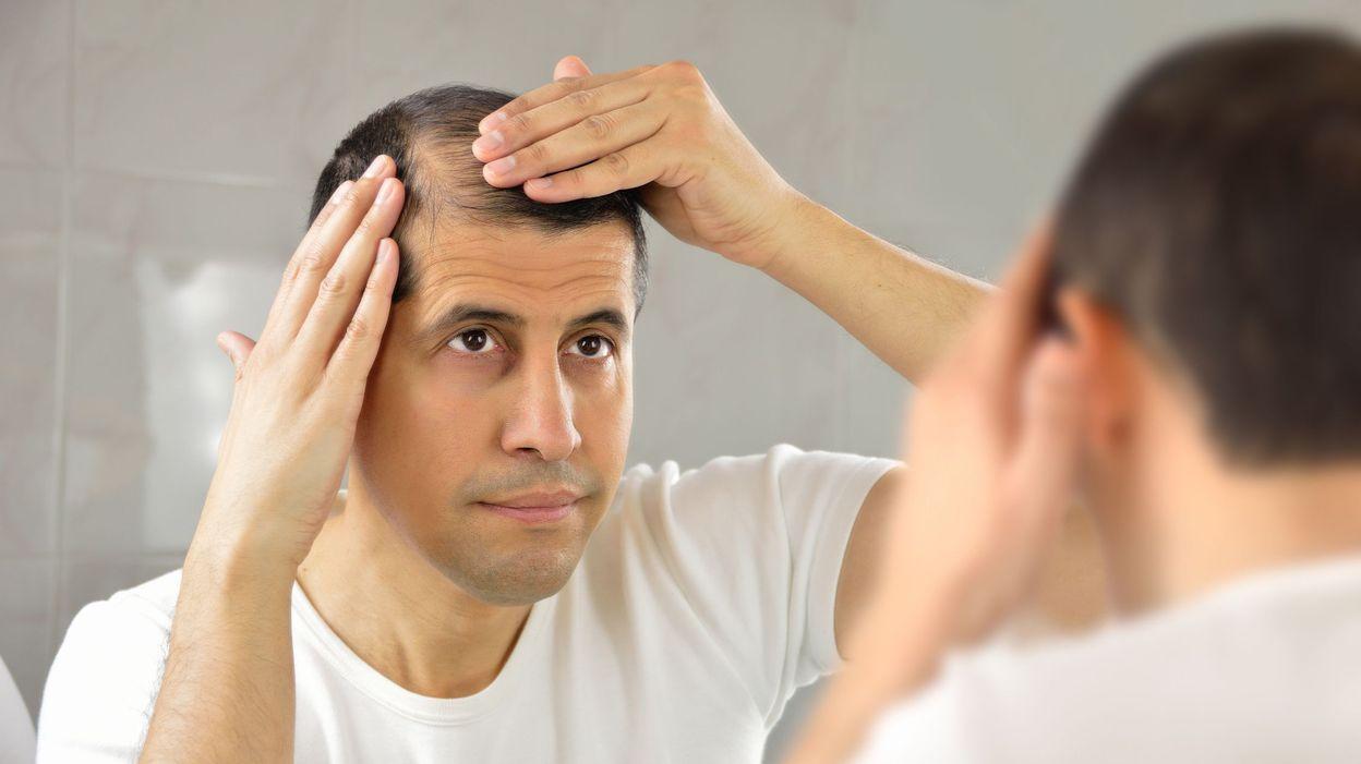 recherche chute de cheveux