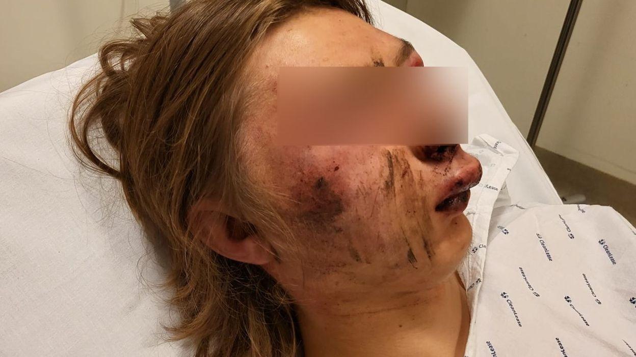 Namur : un adolescent violemment agressé suite à une relation amoureuse