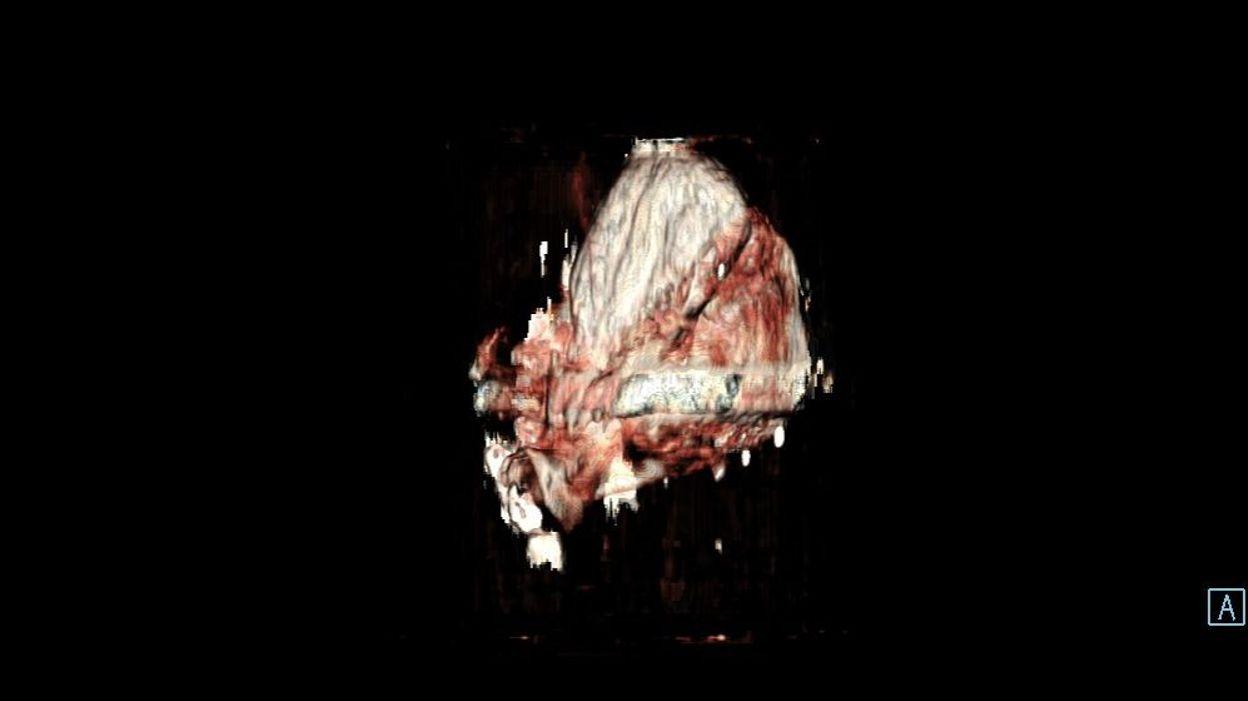 Le coffret retrouvé dans la fontaine a parlé : il contient bien un cœur, sans doute celui de Pierre David, premier Bourgmestre de Verviers - RTBF