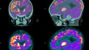 """Des chercheurs présentent une méthode pour détecter """"plus efficacement"""" la maladie d'Alzheimer"""