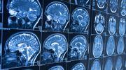 Les comportements antisociaux seraient liés à la structure du cerveau