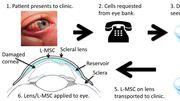 Une lentille thérapeutique pour soigner les lésions de la surface de l'oeil