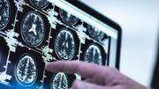 Stress post-traumatique: une étude a analysé le cerveau de survivants aux attentats du 13 novembre