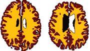 L'obésité pourrait entraîner une vieillesse cérébrale précoce