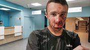 Gilets jaunes: un journaliste atteint au visage par une grenade à Paris, le vrai du faux