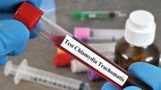 Le dépistage systématique de la Chlamydia recommandé pour les jeunes femmes