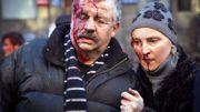 Des manifestants blessés après des affrontements avec les forces de l'ordre, à Kiev