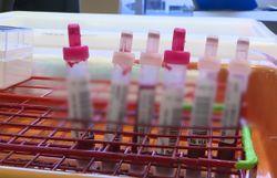Le marché des tests ADN - L'envers du décor dans 7 à la Une