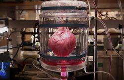 Matière Grise Doc : Comment construire un coeur
