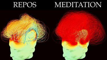 La méditation, c'est bon pour le cerveau?