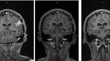 Un futur vaccin belge contre un cancer très agressif du cerveau?