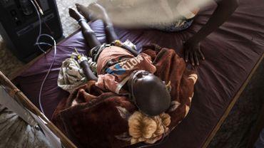 Malnutrition: au moins 400.000 enfants en danger de mort au Kasaï (RDC)