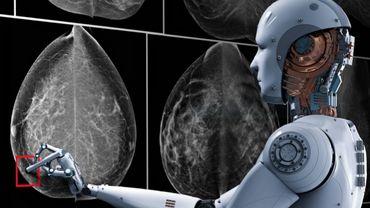 Dépistage du cancer du sein et intelligence artificelle: controverse
