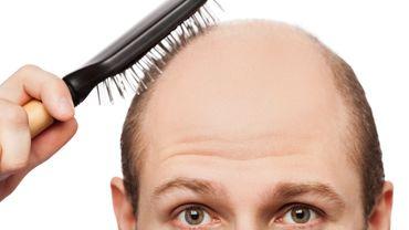 Le vrai ou faux sur la perte de cheveux