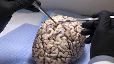 Kenya: un chirurgien suspendu après avoir entamé une opération du cerveau sur le mauvais patient