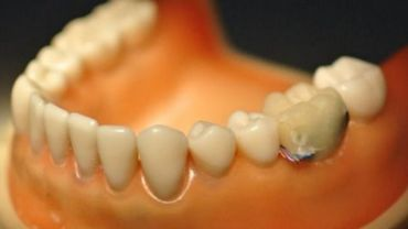 Le premier prototype de dent intelligente, tel qu'il a été conçu par des chercheurs de l'Université de Taïwan