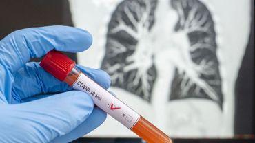Coronavirus - La Région bruxelloise veut doubler la capacité de tests d'ici septembre - A. Maron