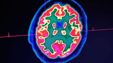 L'appel aux neurosciences, sources d'innovation dans les pratiques scolaires
