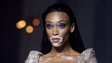 Le mannequin canadien Winnie Harlow lors du défilé Julien Macdonald printemps/été 2019 de la Fashion Week de Londres, le 15 septembre 2018