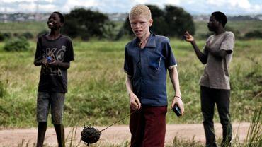 Certaines victimes – souvent des enfants – survivent après avoir été amputées d'une main ou d'un pied.