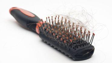 Comment faire face à la chute excessive de cheveux ?