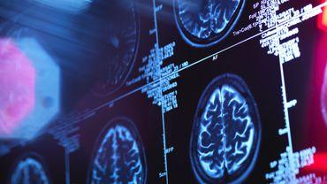 Repérer les risques d'Alzheimer dès l'âge de 20 ans ? C'est possible, affirment des chercheurs