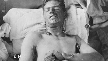 Un soldat canadien touché lors d'une attaque au gaz moutarde.