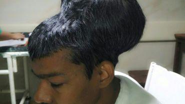 Le patient Santlal Pal avant d'être opéré le 14 février 2018 à Bombay d'une tumeur au cerveau d'un poids record de près de deux kg