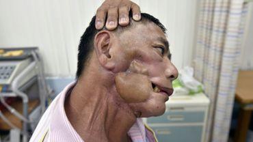 Le Taïwanais Huang Sheng-yi, qui a été opéré d'une tumeur à la mâchoire, fait des exercices de rééducation, le 1er septembre 2017 à Taipei