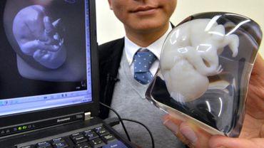 """Des imprimantes 3D permettent aux malvoyants de """"voir"""" leur futur bébé"""