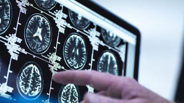 Stress post-traumatique: une étude a analysé le cerveau de survivants aux attentats du 13 novembre.