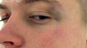 Violences policières contre un adolescent de 14 ans, à Bruxelles