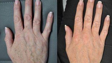 Photo avant-après non datée d'une main ayant subi un lifting