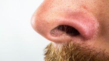 L'UMons lance un appel pour l'étude qu'elle lance sur la perte du goût et de l'odorat