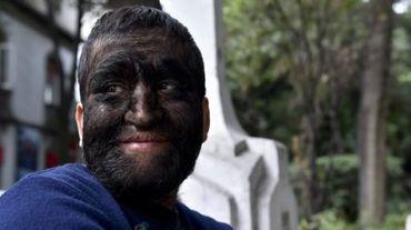 """Jesus Aceves, surnommé Chuy, qui souffre d'une maladie très rare, l'hypertrichose ou """"syndrome du loup-garou"""" à Mexico City, le 24 septembre 2015"""