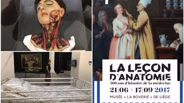 Une leçon d'anatomie où l'Art de la médecine s'expose au musée La Boverie de Liège
