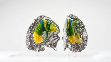 Le cerveau de Vésale, impression en 3D