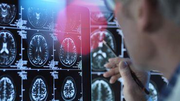 Consommer trop de sucre pourrait favoriser le risque d'Alzheimer