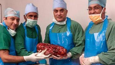 Un Indien se fait retirer un rein de 7,4 kilos