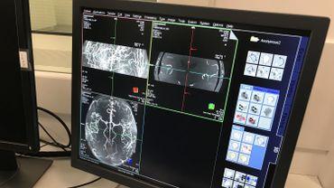 Un scanner de leur cerveau attend notamment les volontaires