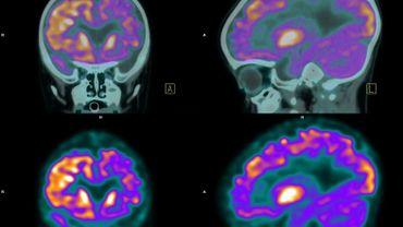 L'enquête, rendue publique lundi, montre que, pour beaucoup, l'épilepsie serait une maladie qui ne se soignerait pas comme les autres et dont les origines seraient étranges.