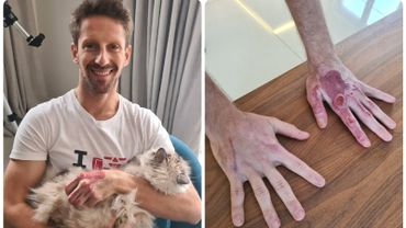 Romain Grosjean, le miraculé, publie une photo impressionnante de ses mains.