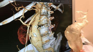 Esneux: dépistage d'un tueur silencieux, l'anévrisme de l'aorte abdominale