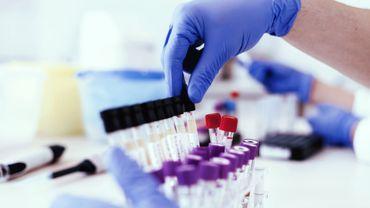 Sclérose en plaques: une molécule synthétique pourrait améliorer le quotidien des patients