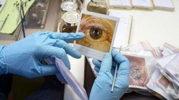 Une personne regarde la photo d'un oeil avant de peindre un iris sur une prothèse oculaire, le 13 mai 2013 à Lyon