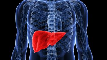 Qu'est-ce que la stéatose hépatique non alcoolique du foie ?