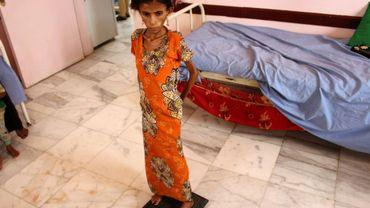 Fatima Hadi, une Yéménite déplacée de 12 ans souffrant de malnutrition aiguë, est pesée dans un hôpital de la province de Hajjah (nord-ouest) la 25 février 2019