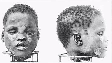 Un crâne de Herero, issu des massacres coloniaux allemands et utilisé ensuite par des laboratoires
