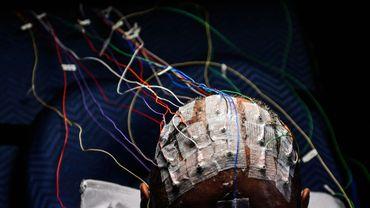 Des électrodes sur la tête d'un patient
